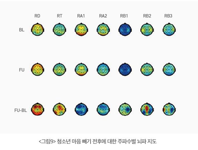 청소년의 마음수련 전후에 대한 주파수별 뇌파 지도